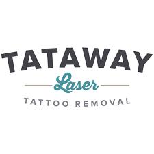 where tattoos and tattoo removal hurt the most tataway