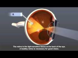 How Does Diabetes Cause Blindness 36 Best Diabetic Retinopathy Images On Pinterest Diabetic