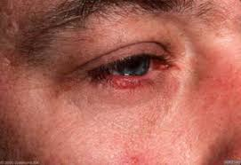 Eyes Are Sensitive To Light Rosacea Treatments At Asw In New Jersey U2013 Rosacea Causes Nj