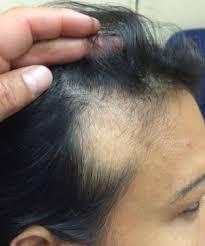 hair style wo comen receding tricks for receding hairline in women receding hairline women