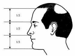teenage hairlines can a teenager with a high hairline seek hairline lowering