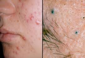 pictures of skin diseases and problems acne