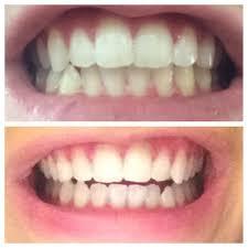 Groupon Teeth Whitening Chicago Jacqueline I Fulop Goodling Dmd 11 Photos Orthodontists 40