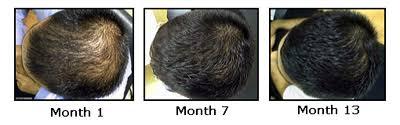 rogaine for women success stories regaine rogaine how effective is regaine for hair loss