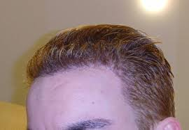 types of hair lines hair loss forum
