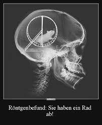 lustige ab sprüche röntgenbefund sie haben ein rad ab lustige bilder sprüche