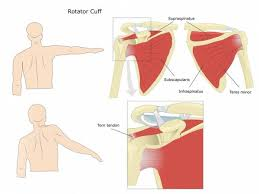Common Shoulder Injuries From Bench Press How To Self Diagnose Your Shoulder Pain Breaking Muscle