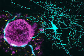 What Is Interneuron Interneurons Allpathy