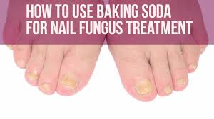 how to stop biting your nails 5 ways to murder the nail biting habit how to use baking soda for nail fungus treatment