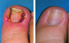 ingrown toenails causes and treatments kansas city health and