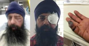 attackers assault sikh man remove turban cut off his hair