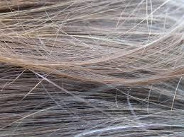 Hair Loss Vitamin Deficiency The 5 Best Vitamins For Hair Growth