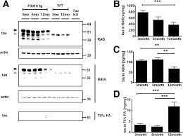 in vivo microdialysis reveals age dependent decrease of brain