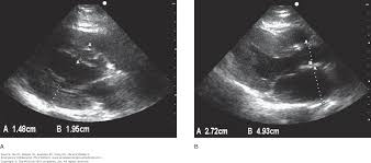 chapter 6 cardiac ma and mateer u0027s emergency ultrasound 3e