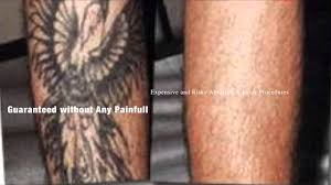 best natural tattoo removal without costly laser treatments or