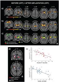 by p d fmri analysis of the tapping test performed by pd patients