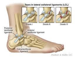 Ankle Ligament Tear Mri Ankle Sprain U0026 Instability Orthopedics Library Demo