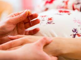 bébé siège acupuncture maux de grossesse acupuncture et grossesse 7 questions à un