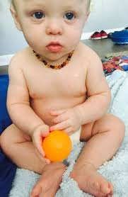 amber necklace baby images 11 inch baltic amber teething necklace bean multi pain jpg