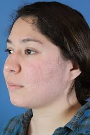 Blu U Before And After Fraxel Dual Austin Tx Fraxel Laser Treatments