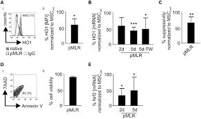 the impact of inflammatory licensing on heme oxygenase 1 u2013mediated