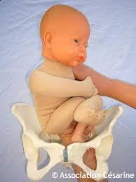 retourner bébé en siège césarine siège et césarienne