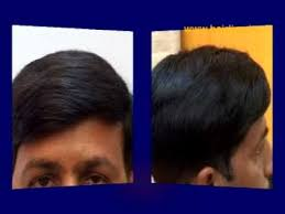 hair bonding hair replacement hair bonding