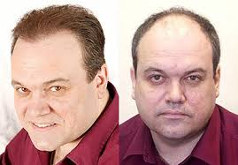 coronation street hair transplants shaun williamson hair transplant before and after