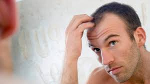 Signs Of Hair Loss Male Hair Myths You Should Stop Believing Health