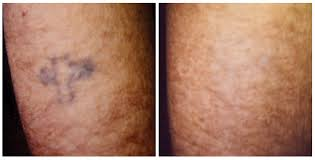 100 cheap laser tattoo removal los angeles news updates