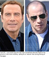hair weaves for balding men is john travolta becoming more comfortable with his baldness