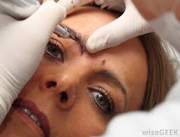 what is involved in eyebrow tattoo removal with pictures