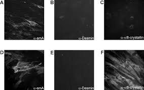biochemical and morphological analysis of basement membrane