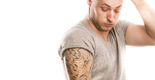 laser tattoo removal atlanta
