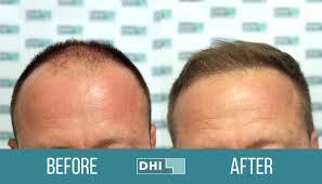 dhi hair transplant reviews hair transplants gone wrong consumer warning
