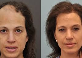 hair transplant america hair transplant surgeon austin houston san antonio dallas
