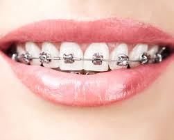 types of braces overland park olathe ks kansas city mo