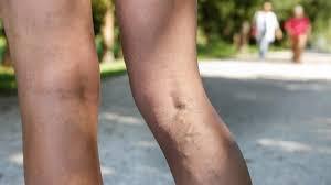 bindegewebsschwäche beine krfadern vorbeugen mit sport und richtiger ernährung