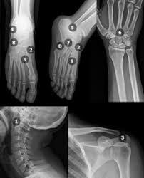 Os Calcaneus Ecr 2016 C 1827 Symptomatic Accessory Ossicles A Pictorial