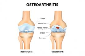 Picture Human Body Arthritis Causes Types And Treatments