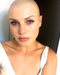 bald women haircuts gaia kingdom unearthed photo from my previous baldness some