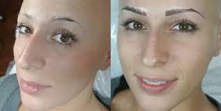 alopecia sheila bella permanent makeup and microblading