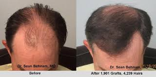how thick is 1000 hair graft fue hair transplants