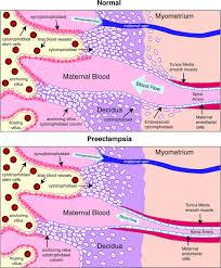preeclampsia a disease of the maternal endothelium circulation