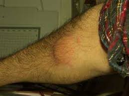 Severe Bed Bug Bites Bed Bug Bites Easy Identification And Remedies