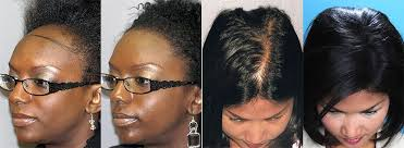 hair transplant for black women hair transplant results before and after photo gallery bosley
