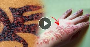 black henna u0027 tattoo causes allergic reaction to skin that leaves a