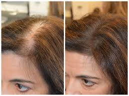 hair styles for thining hair on crown hairstyles for thinning hair at the crown men hairstyles with thin