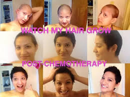 hair 6 months after chemo what is a good way to stimulate new hair growth following hair