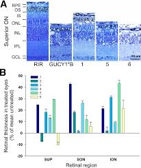 lentiviral expression of retinal guanylate cyclase 1 retgc1
